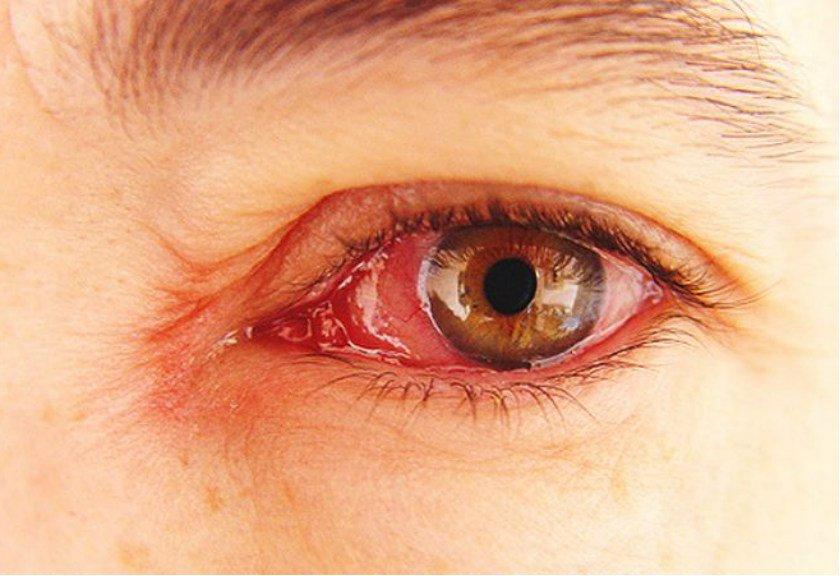 doa terhindari dari sakit mata