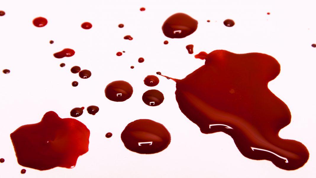 Pendarahan sebelum melahirkan