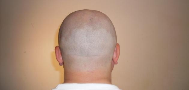 menggunduli rambut